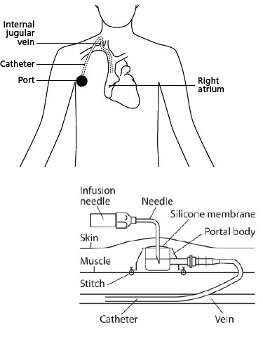 Implanted port
