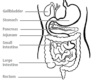 Medical conditions - Gastro-oesophageal reflux 1
