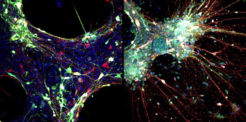 Brain cells under a microscope