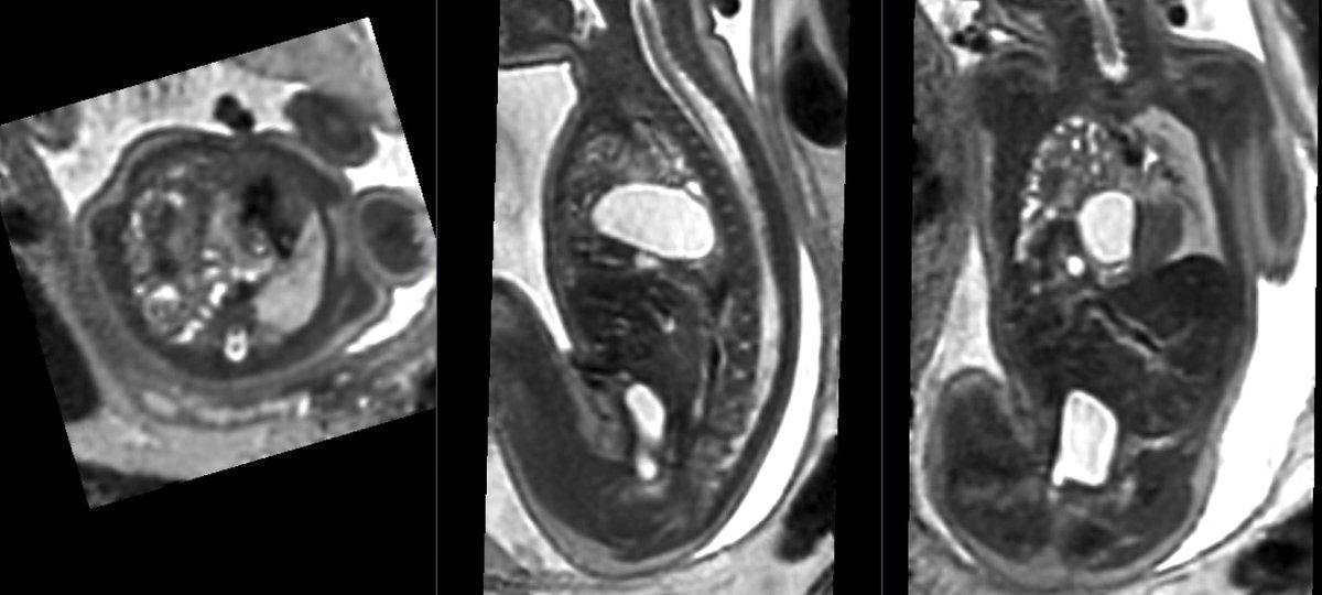 MRI scan of fetus