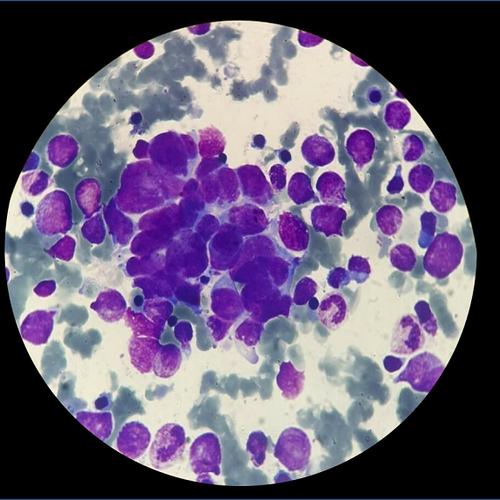 Neuroblastoma cells