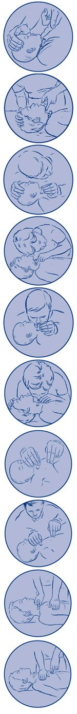 Basic life support of babies and children with a tracheostomy