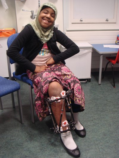 Patient Maryam with a leg frame